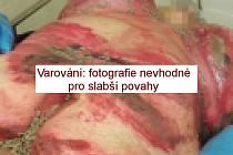 Záběry nevhodné pro slabší povahy. 70letá žena ze Slovenska v Pardubicích doslova hnila zaživa.