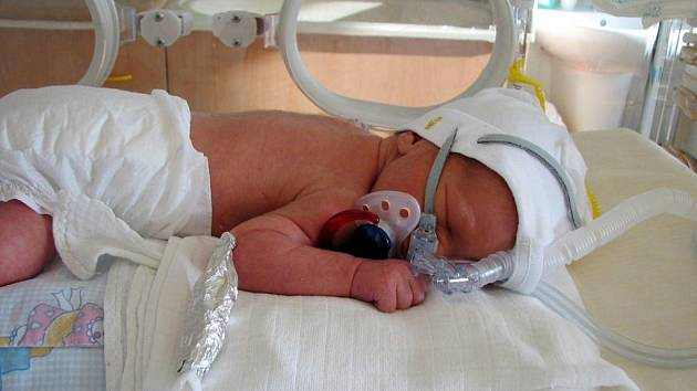 Novorozenec ohrožený virem H1N1