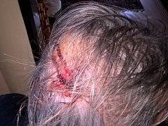 Zraněný opilý muž skončil s tržnou ráno v péči lékařů. I těm ale utíkal.
