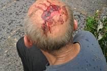 Muž po pádu utrpěl krvavé zranění na hlavě