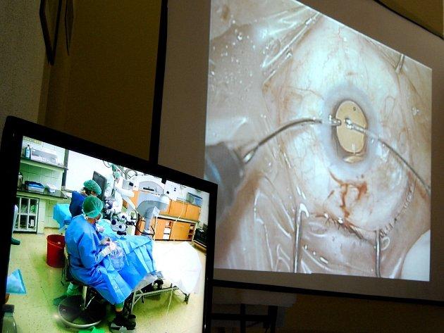 Oční lékaři Pardubické nemocnice operovali za přítomnosti kamery.
