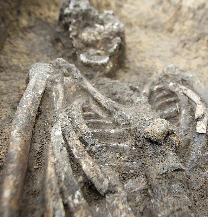 Na hrudi měl muž zbytky železné spony