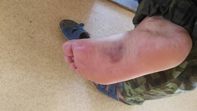 Zraněná noha. Hasiče před vážnějšími následky ochránila hlavně zásahová obuv. I tak si ale léčba vyžádá až několik dní.