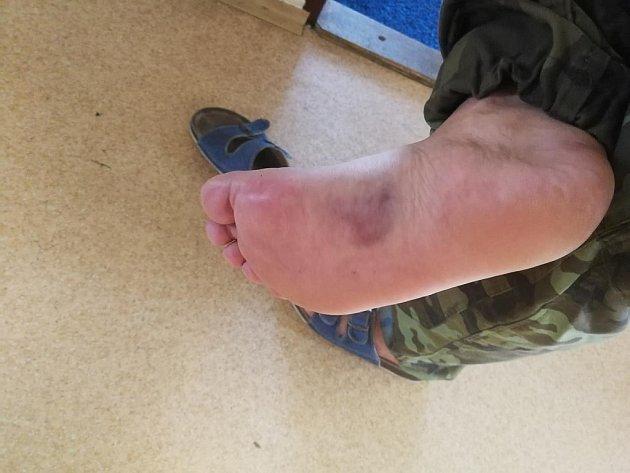 Zraněná noha. Hasiče před vážnějšími následky ochránila hlavně zásahová obuv. Itak si ale léčba vyžádá až několik dní.