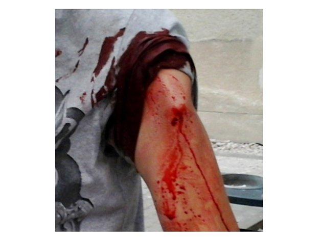 Otevřená zlomenina pažní kosti. Muž si toho prý nevšiml...