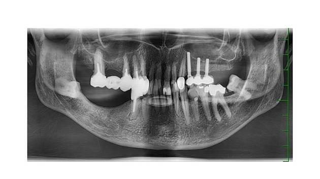 Zubní snímek neznámé utonulé ženy z Pardubic. Kriminalisté se obrací zejména na dentisty, kteří by mohli poznat svou práci a pomoci identifikovat neznámou ženu.