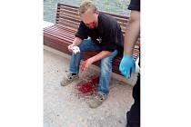 Rvačka před nádražím skončila krvavě.