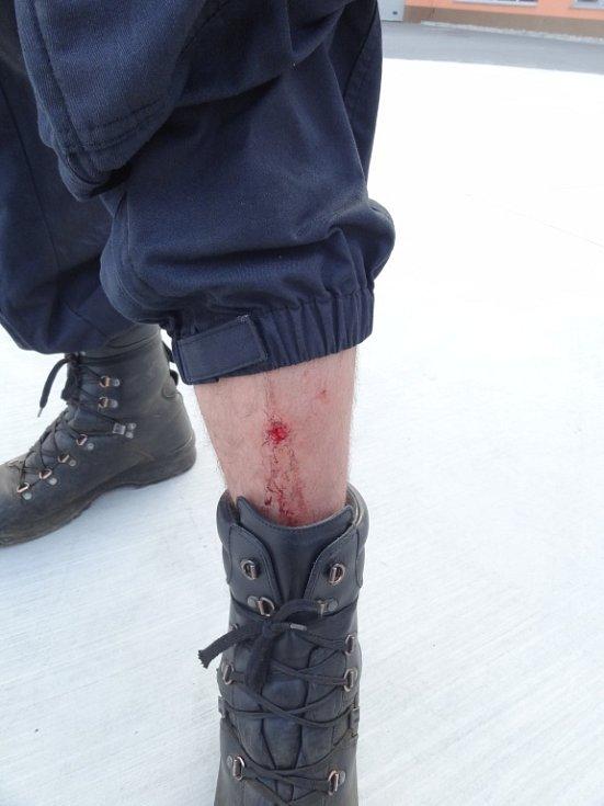Při střetech s radikály bylo zraněno osm policistů z Pardubického kraje.