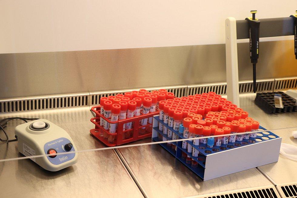 Vzorky v laboratoři. Foto: FN Plzeň