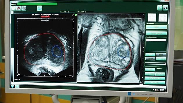 Přístroj, který provádí spojení obrazu ze sonografie (vlevo) a magnetické rezonance (vpravo). Červená linie zobrazuje prostatu a modrá podezřelé ložisko zkarcinomu.