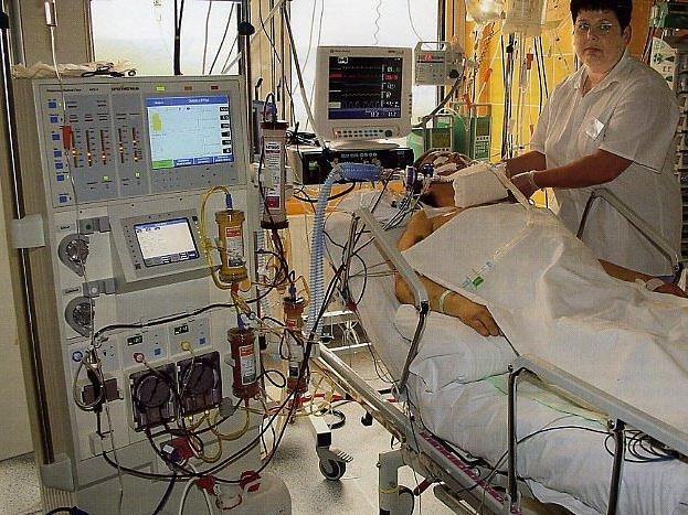Na Metabolické JIP přijali prvního pacienta léčeného pomocí Prométhea v dubnu