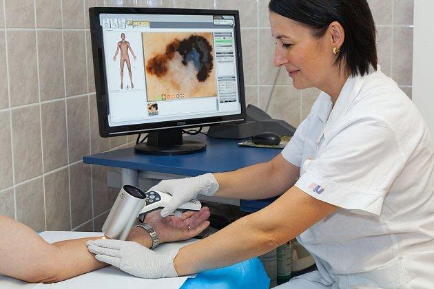 Dermatoskopické vyšetření snálezem melanomu.
