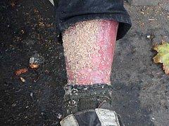 Muž bez domova nemohl chodit, v noze měl červy