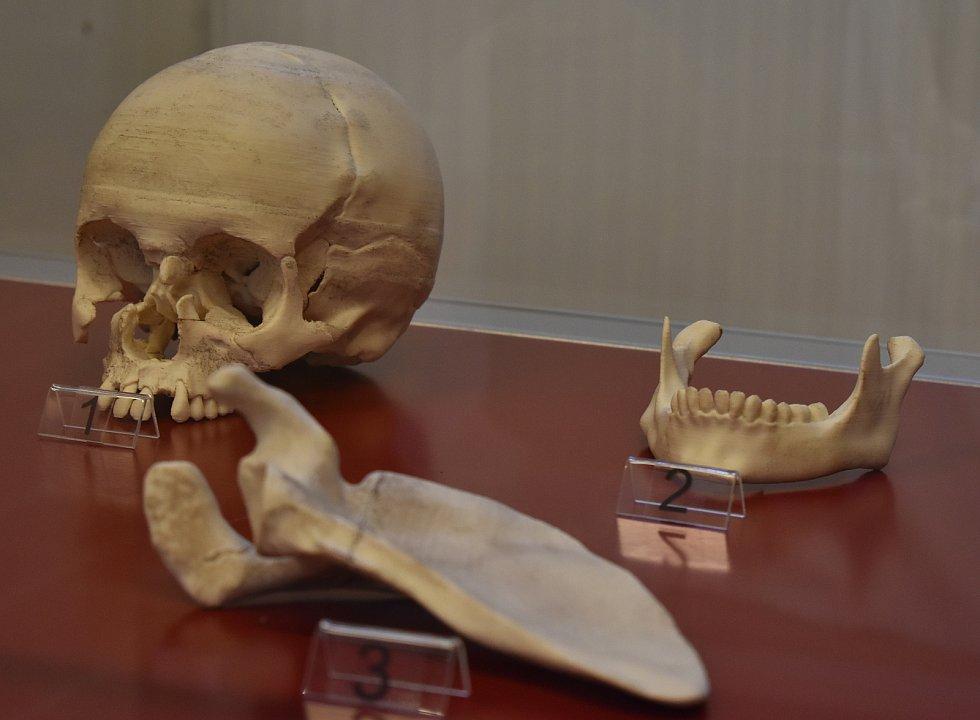 Svatojánské muzeum v Nepomuku vystavuje i odlitek lebky Jana Nepomuckého, kde je vidět poškození obličejové části způsobené mučením.