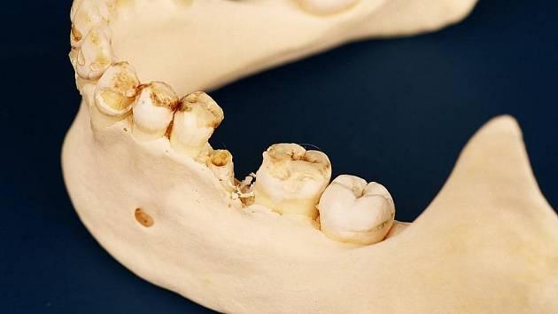 Kdyby pacientka s takovým chrupem navštívila stomatologa, jistě by si ji zapamatoval