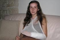 Darinu Břicháčkovou pokousal v Lisově rotvajler. Z ruky jí vyrval kus masa až na kost. Dívka teď trpí bolestí, a jestli bude moci hýbat prsty, záleží na tom, jak se jí zahojí šlachy.