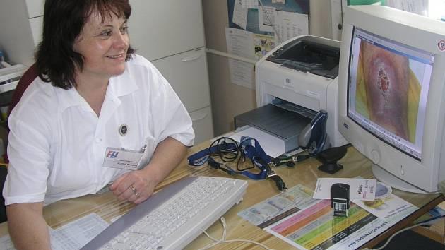 Zdravotní sestra Miroslava Jílková začala ve FN léčit larvami