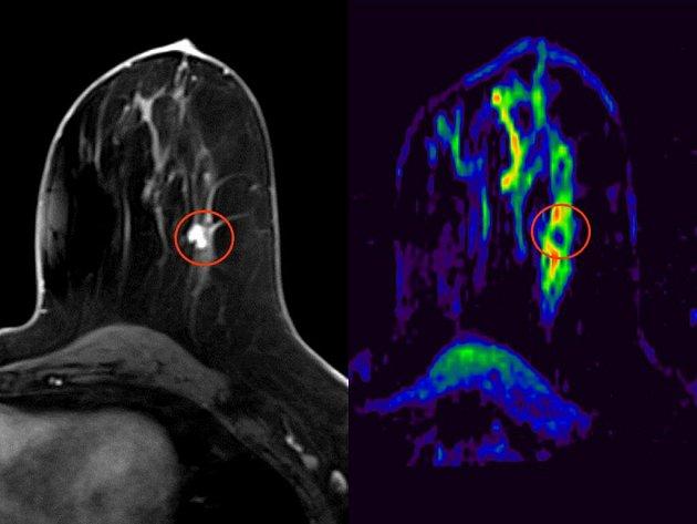 Na fotografii je v kroužku vidět malý nádor levého prsu, tmavý odstín nádorové tkáně na barevné mapě pak prokazuje jeho maligní neboli zhoubnou povahu