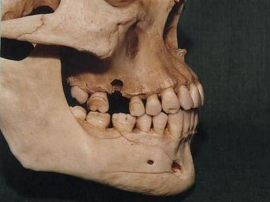 Lebka zavražděného muže s pravidelným chrupem, v němž je jasně vidět ztráta stoličky