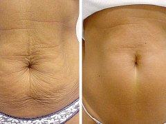 Břicho před a po metodě Thermage.