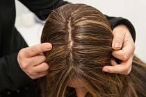 Třetina lidí má problémy s vypadáváním vlasů. Pomoci může nová metoda.
