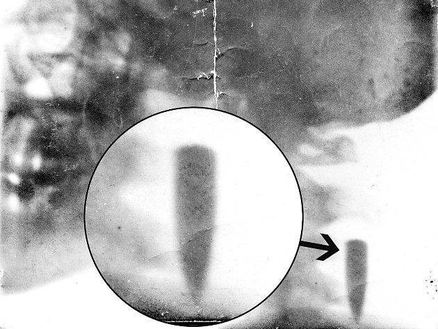 RENTGENOVÝ SNÍMEK zranění a zvětšení kulky, šipka označuje místo.