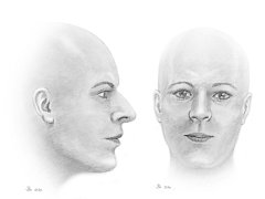 Takto by mohla vypadat žena, jejíž lebku našli němečtí policisté. Měla žít na Šumavě.