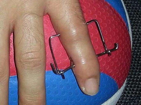Nepříjemná zpráva, Filův prst se špatně léčí