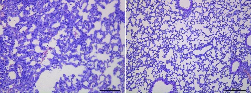 Nová protilátka proti koronaviru se zkoumala na myším modelu pro infekci.