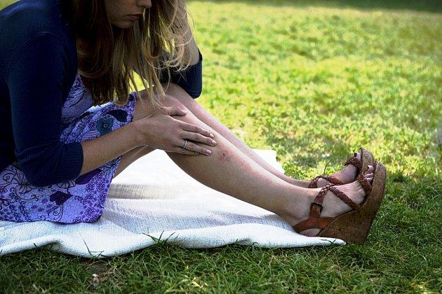 Samičky komára sají krev teplokrevných živočichů. Přitom často přenáší velmi nebezpečné nemoci. Jednotlivé druhy se liší velikostí, ale jen výjimečně měří přes 16mm.