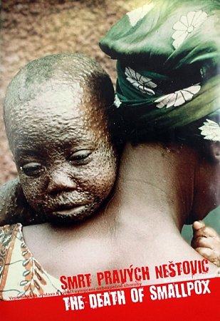 Výstava Smrt pravých neštovic na Jihočeské univerzitě.