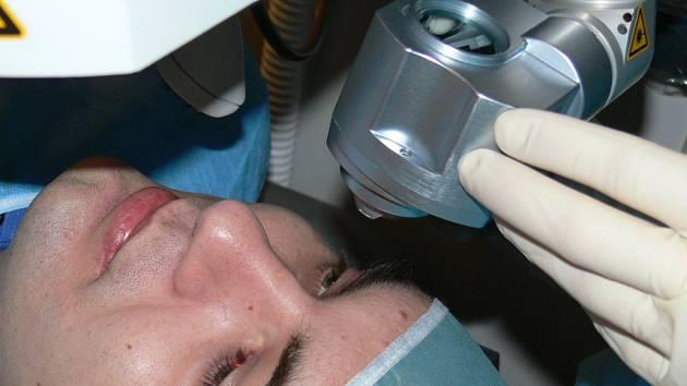 Pacient a detail femtosekundového laseru těsně před zákrokem.
