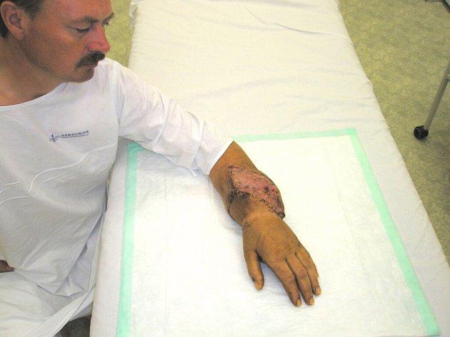 Náročná operace byla úspěšná. Pacientovi se vrací do ruky ztracený cit.