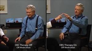 Příčina vzniku Parkinsonovy choroby je neznámá, pročež se nedá léčit. Lze jen potlačit příznaky.