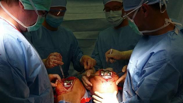 Doktoři z Fakultní nemocnice u sv. Anny v Brně jako první v České republice vyměnili paciente s artrózou kolen oba klouby najednou.