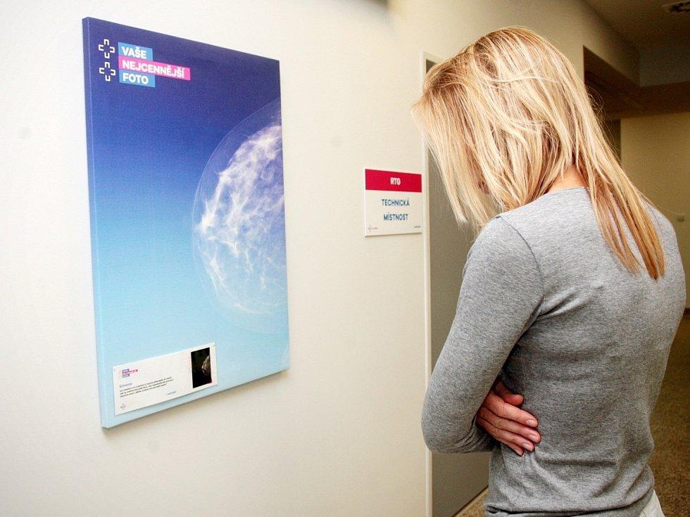 Uměním na prevenci proti rakovině prsu upozornili ve čtvrtek lékaři z brněnské Polikliniky Zahradníkova. Na stěnách radiologického oddělení vystavili sérii snímků z mamografického screeningu.