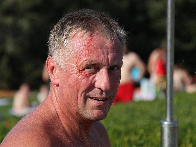 Šéf ODS Mirek Topolánek po zásahu kamenem do hlavy.