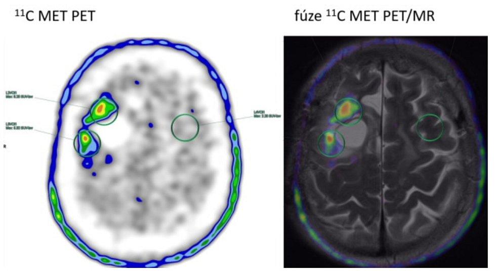Užití radiofarmaka 11C-Methionin v praxi (vlevo vyšetření PET, vpravo vyšetření PET v kombinaci s MR).