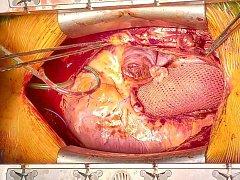 Unikátní operaci provedli před nedávnem chirurgové z brněnského Centra kardiovaskulární a transplantační chirurgie. Dvěma mladým pacientkám implantovali speciální síťky na srdeční aortu.