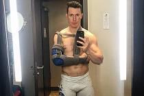 SMOLNÉ ZRANĚNÍ. Dráhový cyklista Tomáš Bábek kvůli zlomené klíční kosti nebude obhajovat na mistrovství světa stříbrnou a bronzovou medaili.