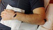Starodávnou léčebnou metodou pomáhá Zuzana Závišková pacientům z Brna a okolí. Zájemcům přikládá na bolestivá místa pijavice.