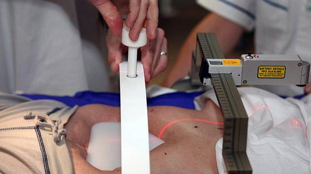Radioterapie takzvaným X-nožem v Masarykově onkologickém centru na Žlutém kopci.
