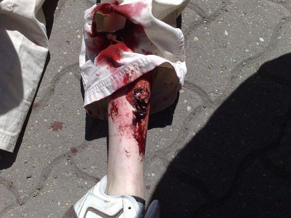 Figurantka - zraněná žena.