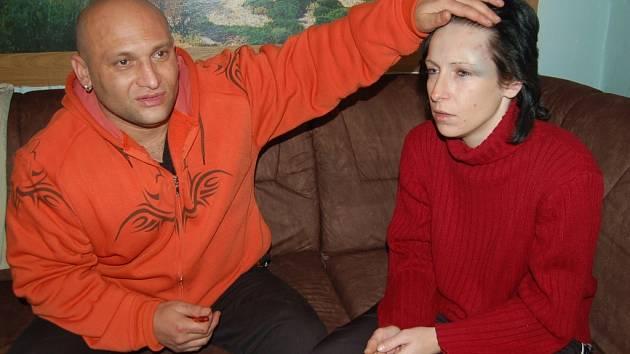 Monika Pfeiferová ukazuje své zranění.