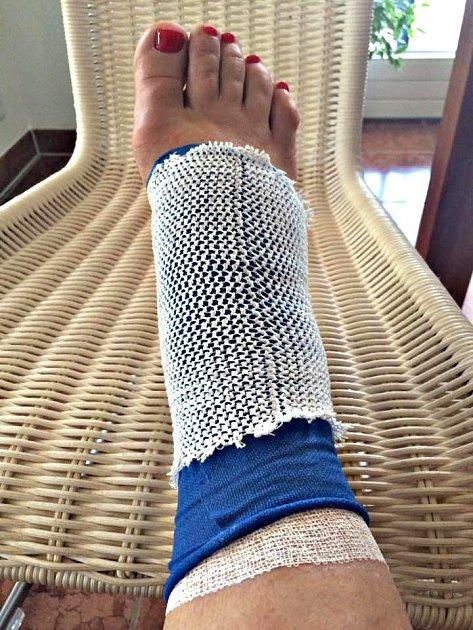 Poraněná noha Dagmar Peckové. Snímek zveřejnila na svém FB profilu.