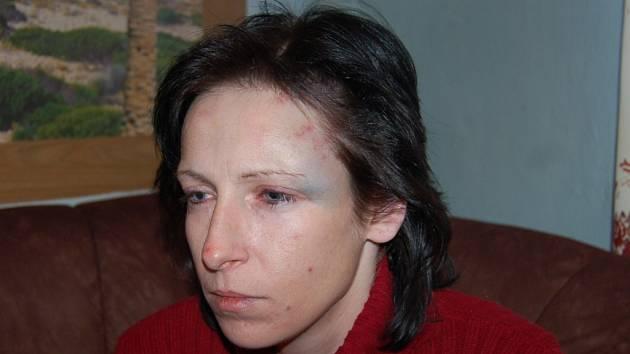 Zranění Moniky Pfeiferové