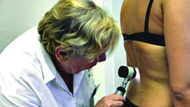 DEN MELANOMU. Sokolovská nemocnice bude v pondělí provádět bezplatné vyšetření kůže.
