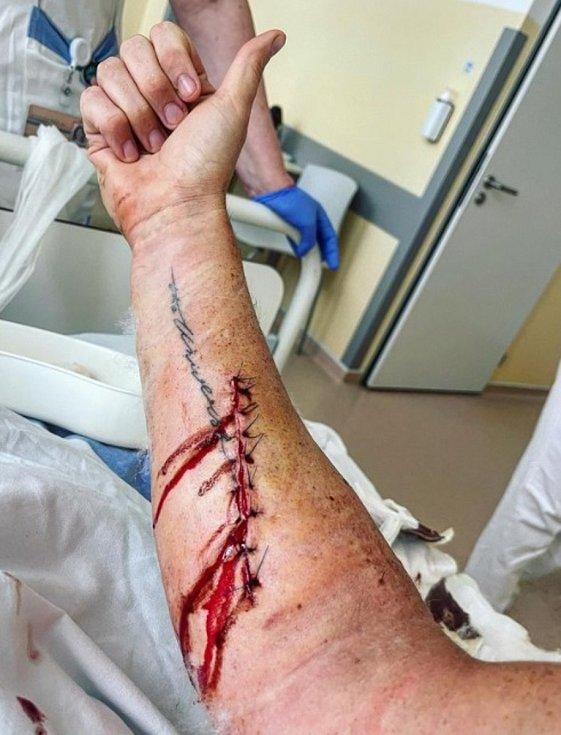 Kazma podstoupil operaci v táborské nemocnici.