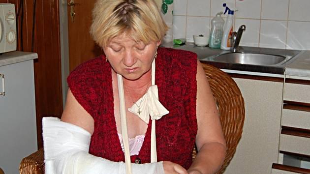 Jarmila Plochová (na snímku) byla pokousána sousedovic psem