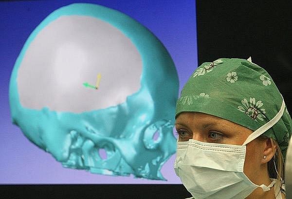 Operace mozku v ústecké Masarykově nemocnici.